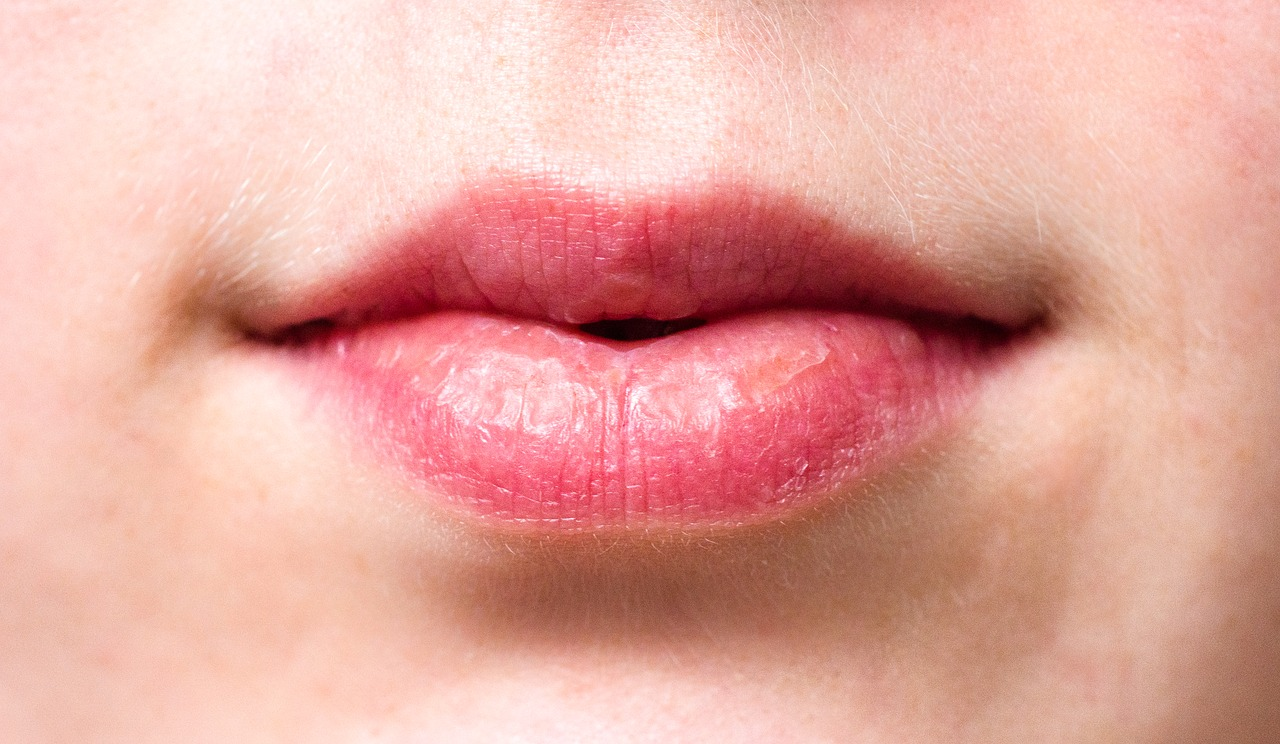 dry lips of a person