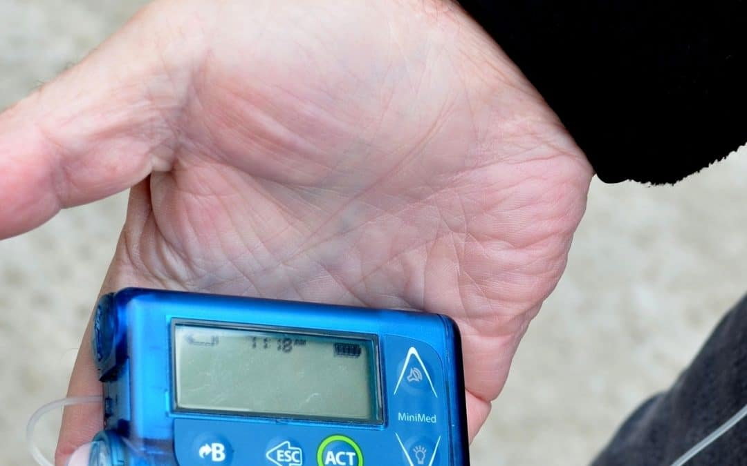 6 Best Insulin Pump Options